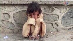 Աֆղանստանը`ձմռանն ընդառաջ, Արեւմուտքն`ի աջակցություն քաղցած միլիոնավոր երեխաների