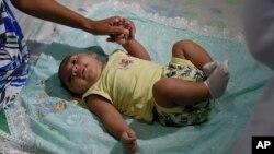 یک کودک سه ماهه در برزیل، کشوری که نوزادان بسیاری به خاطر ویروس زیکا جمجمه کوچی دارند.