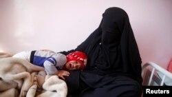 Umwana w'umunyayemeni aryamye ku bibero vya Nyina mu kigo c'i Sanaa kivura ikiza ca Kolera