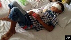 Guo Bin (6 tahun), korban serangan yang mencongkel matanya di sebuah wilayah raral di kota Linfen, Taiyuan, Barat Laut provinsii Shanxi, China mendapatkan perawatan di sebuah rumah sakit (28/8).