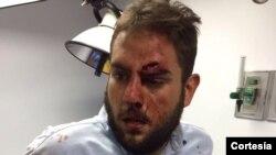 El parlamentario recibió una herida en la frente durante la jornada de protestas que ha llevado a cabo el partido Primero Justicia en rechazo a las acciones del Tribunal Supremo de Justicia.