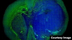 This image of a human glioblastoma brain tumor was made with stimulated Raman scattering microscopy. The technique allows the tumor (blue) to be easily distinguished from normal tissue (green) based on signals emitted by tissue with different cellular structure.