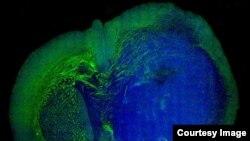 Snimak glioblastoma - agresivne vrste tumora na mozgu.