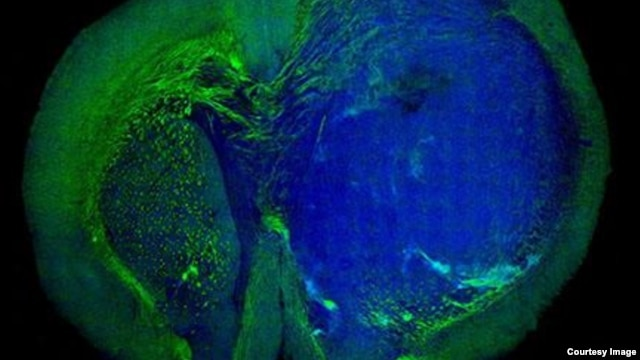 This image of a human glioblastoma brain tumor in the brain of a mouse was made with stimulated Raman scattering, or SRS, microscopy. The technique allows the tumor (blue) to be easily distinguished from normal tissue (green).
