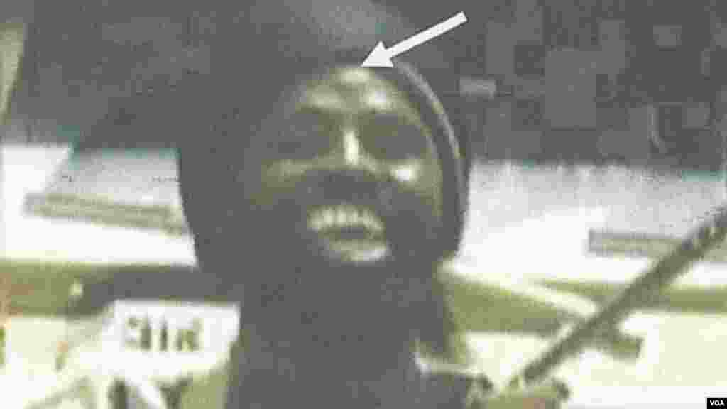 Detail of photo showing a unique facial mark indicating the identity of the body as the same person appearing in several Boko Haram videos.