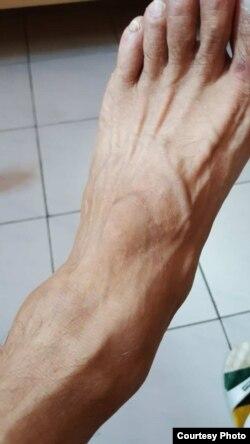 张桂林脚被砸受伤(张桂林提供)