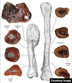 A comparison between thin sections of the cancerous leg bone (L) and a normal fibula bone of the horned Centrosaurus is seen in this image released on August 3, 2020.