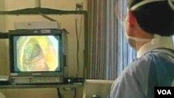 Dokter tengah melakukan metode colonoscopy untuk mendeteksi adanya kanker usus besar (foto: dok.).
