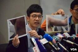 香港眾志主席羅冠聰展示遇襲傷痕的照片。(美國之音湯惠芸攝)