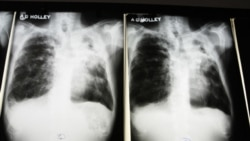 X-rays from a tuberculosis patient