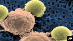 ทีมนักวิจัยออสเตรเลียจะถอดรหัสยีนเซลมะเร็งผิวหนัง
