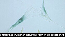 This April 2019 microscope photo provided by the Niedernhofer Lab of the Institute on the Biology of Aging and Metabolism at the University of Minnesota shows shows two senescent human fibroblast cells, above, next to normal ones in Minneapolis.
