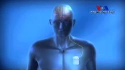 Beyin Hastalıklarına Elektik Akımı Tedavisi