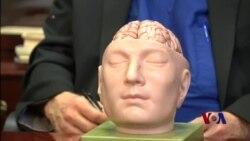3D模型可帮助医生做好高难度手术
