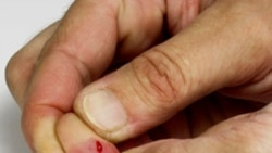 When a Cut Finger Is More Serious Than It Might Seem