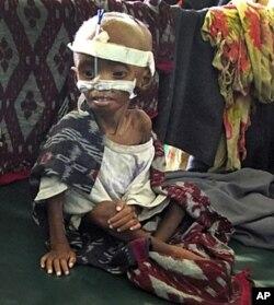 Un enfant victime de malnutrition à l'hôpital Banadir de Mogadiscio