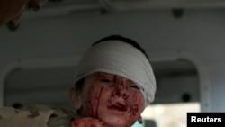 喀布尔一名男孩在2018年1月27日的恐怖袭击中受伤(路透社)