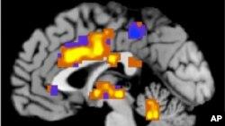 Para peneliti melaporkan bahwa mereka mampu menghilangkan perilaku kecanduan narkoba pada tikus yang kecanduan kokain dengan merangsang bagian otak yang disebut korteks prefrontal dengan sinar laser. Mereka juga mendapati bahwa efek itu bisa dibalikkan, mengubah tikus menjadi kecanduan kokain (foto: Dok).