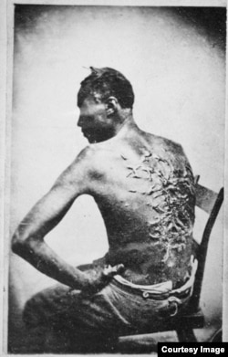 "The original caption on this 1863 photograph of a slave read: ""Overseer Aarayou Carrier whipped me. I was two months in bed sore from the whipping. My master come after I was whipped; he discharged the overseer."" (Courtesy: The National Archives)"