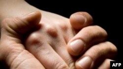 Лечение боли прикосновением