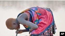 불결한 저수지 물을 마시는 아프리카 여인