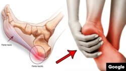 Plantar Fasciitis (Photo credit: celasers.com)