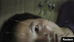 A patient suffering from facial paralysis undergoes acupuncture treatment at a traditional Chinese medical hospital in Jiaxing, Zhejiang province, July 11, 2012.