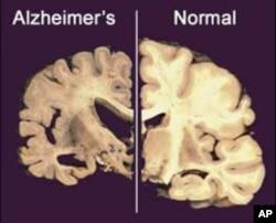 Não của người mắc chứng Alzheimer (trái) so với não của người bình thường
