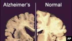 This undated image provided by Merck & Co. shows a cross section of a normal brain (right) and one of a brain damaged by advanced Alzheimer's disease.