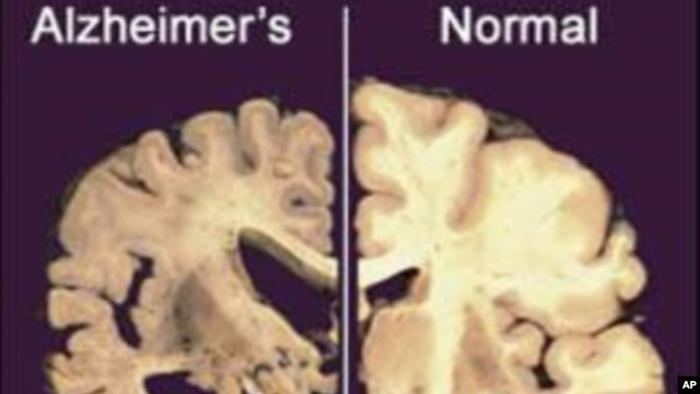 This undated image provided by Merck & Co., shows a cross section of a normal brain (right) and one of a brain damaged by advanced Alzheimer's disease, December 3, 2012.