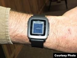 Tyler Skluzacek shows the myBivy smartphone/smartwatch application that helps military veterans suffering from PTSD sleep better at night. (Courtesy photo / T. Skluzacek)