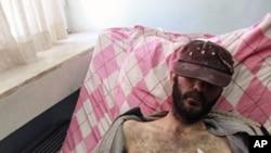 3月20日一名自由敘利亞軍傷者躺在土敘邊界醫院裡
