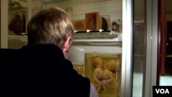 Posetilac Nacionalnog muzeja zdravstva i medicine posmatra jedan od najbizarnijih eksponata kolekcije - fetus sijamskih blizanaca.