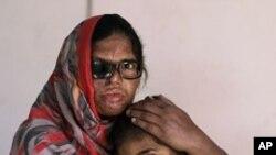 หนัง Saving Face ช่วยปลุกสำนึกเรื่องการช่วยเหลือสตรีปากีสถานที่ถูกทำร้ายด้วยน้ำกรด