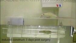 Cirugía lesión espinal con células madre
