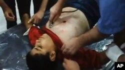 Nhân viên y tế ở Aleppo đang chữa trị cho một bé trai bị thương