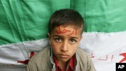 """在黎巴嫩的叙利亚难民的孩子前额上写着""""下台"""",意指要叙总统阿萨德下台"""
