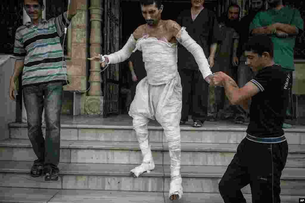 A Syrian man with more than half his body burnt from an air strike leaves a field hospital to go back home at a village turned into a battlefield with government forces in Idlib province, northern Syria, Sept. 22, 2013.