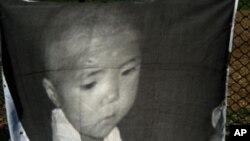 영양결핍 북한 아동 포스터