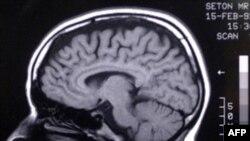 Наш мозг изменчив и пластичен