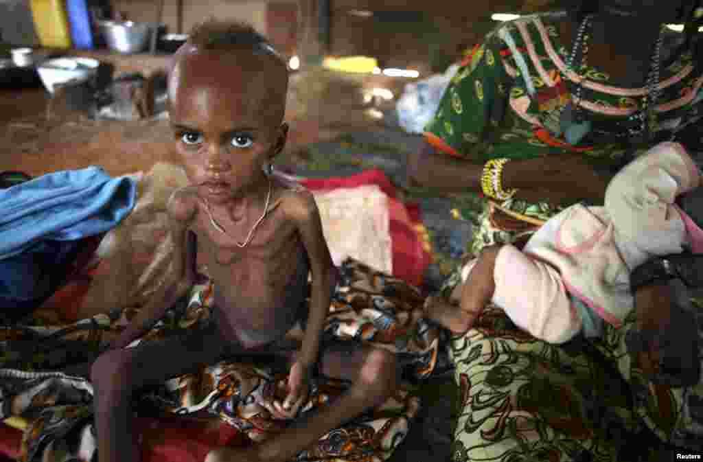 중앙아프리카 보다 마을의 한 무슬림 여자아이가 영상실조로 앙상하게 마른채 엄마 옆에 앉아있다.