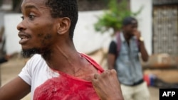 A man shows his injuries on September 20, 2016, near the offices of the main opposition party, Union for Democracy and Social Progress in the Democratic Republic of Congo.