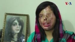 کراچی: تیزاب سے چہرہ ہی نہیں روح بھی گھائل