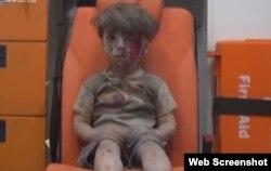 지난 9월 알레포 주거지역 공습 직후 구급차로 옮겨진 5세 어린이 옴란 다크니시.