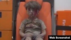 Preminuo brat ranjenog sirijskog dečaka Omrana Dakneša