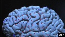 Kỹ thuật dò quét não phát hiện được ý thức nơi người bị hôn mê