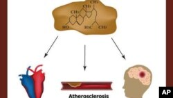 High cholesterol causes - heart attack, stroke, atherosclerosis.