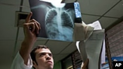 Doctor examines a chest x-ray of a child with pneumonia