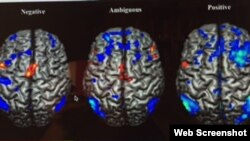 Proyecciones tridimensionales de activaciones y desactivaciones durante pruebas de improvisación para condiciones de diferentes emociones. Foto tomada de sitio web http:www.nature.com/articles/srep18460