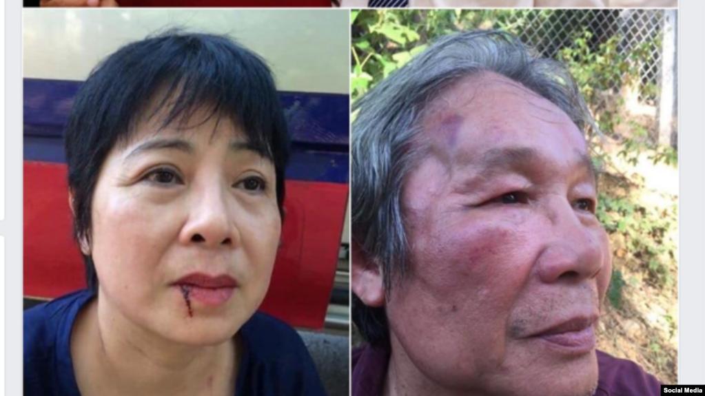 Bà Nguyễn Thúy Hạnh và ông Huỳnh Ngọc Chênh bị hành hung ngày 12/07/2019 khi đến các tù nhân lương tâm ở Trại 6 Nghệ An. Facebook Nguyen Thuy Hanh.